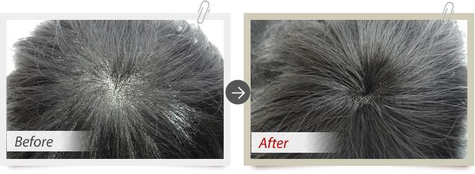 増毛と髪の長さ調整
