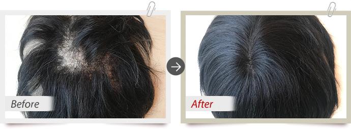 修理実例:全体的な脱毛